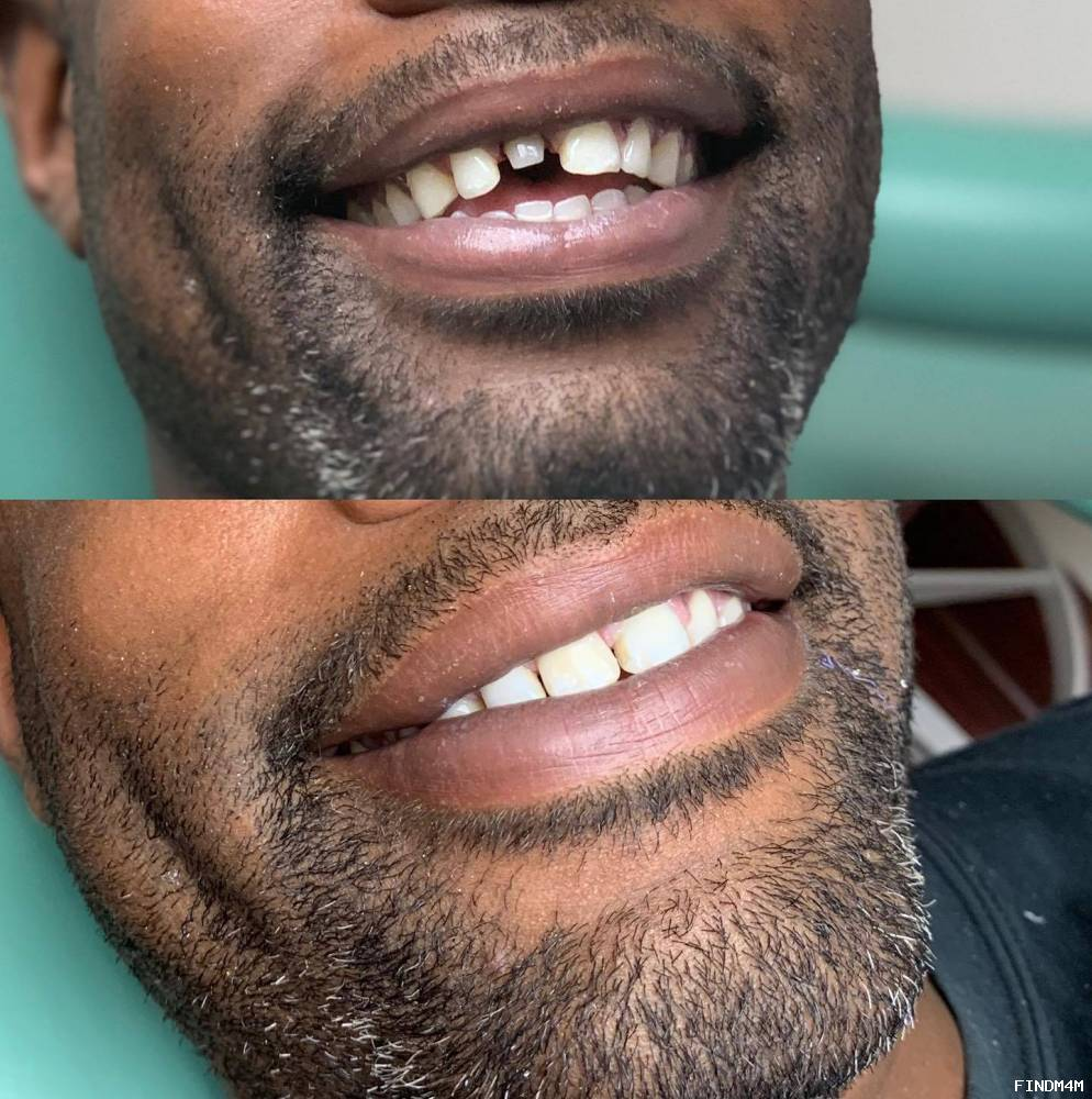 Precision Dental NYC